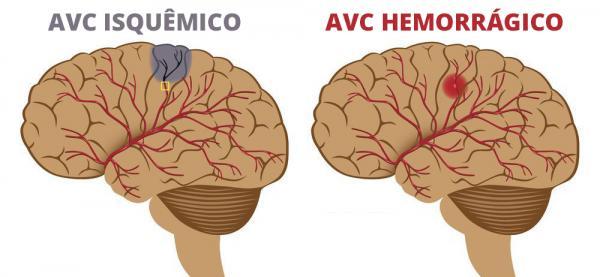 AVC hemorrágico e AVC isquêmico.